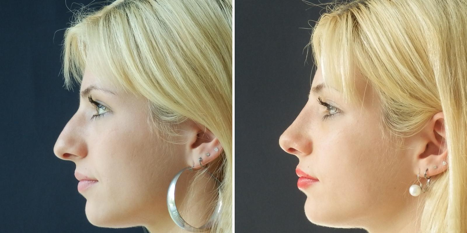 rinoplastika visečega ali korabilanega nosa