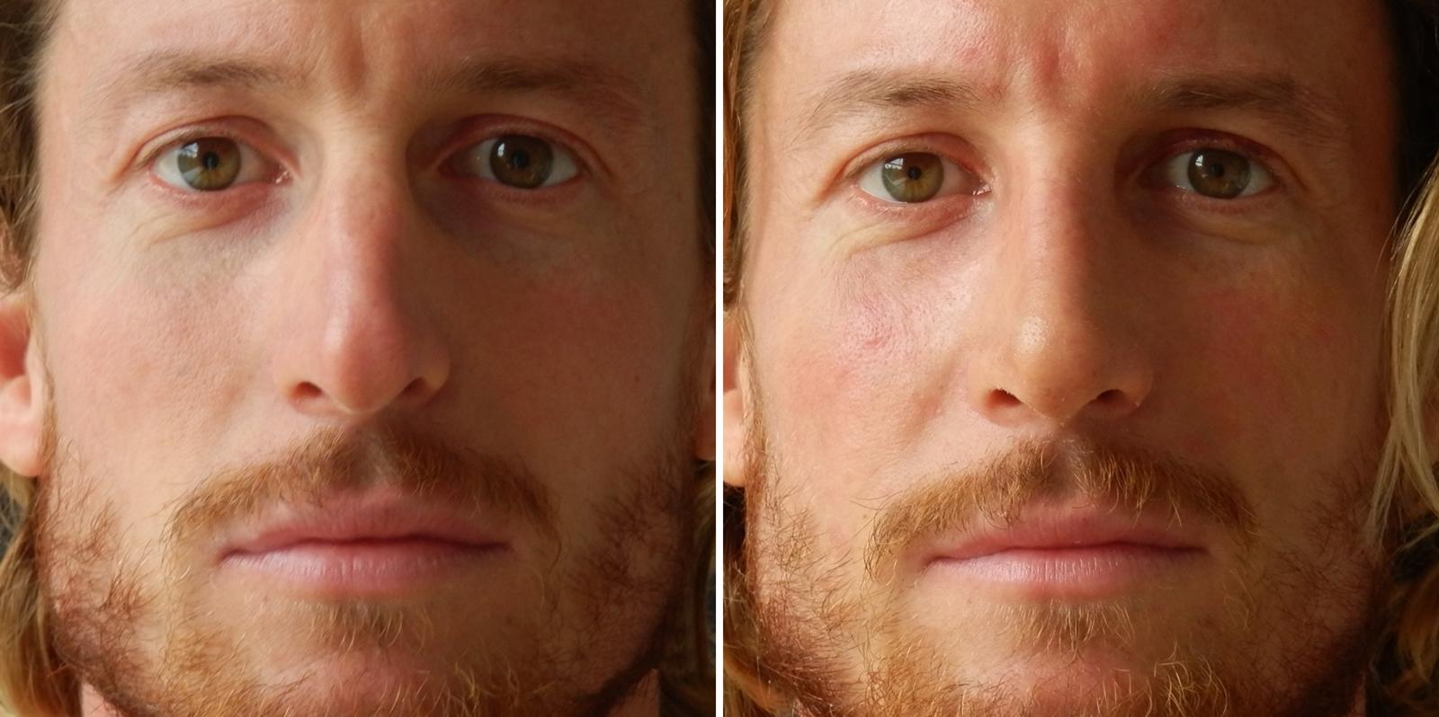 6 nos sprijeda