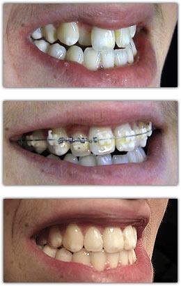 Fiksna ortodontija-before-after