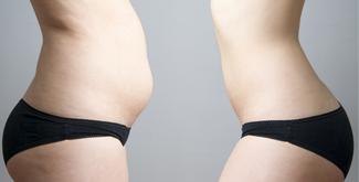 liposukcija-prej-potem