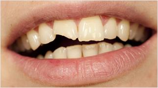 Zlomljen zob
