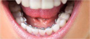 nevidni-zobni-aparat