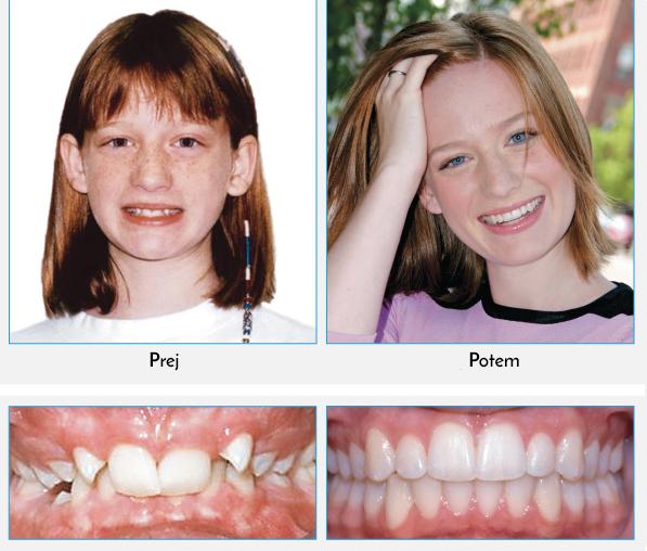 Prej: Nove raziskave dokazujejo, da je v primerih, kot je ta, popoln nasmeh mogoče doseči brez puljenja zob. Potem: Poglejte, kako je ta prekrasen, širok nasmeh mogoče doseči s pomočjo blagih sil. Damon Sistem je pomagal, da se to mlado dekle, preobrazi v prekrasno mlado žensko.