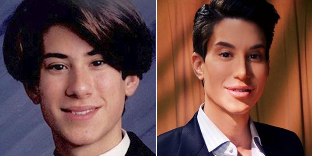 Justin Jedlica je imel več kot 140 lepotnih operacij in je zapravil že več kot 150.000 $ za preobrazbo.