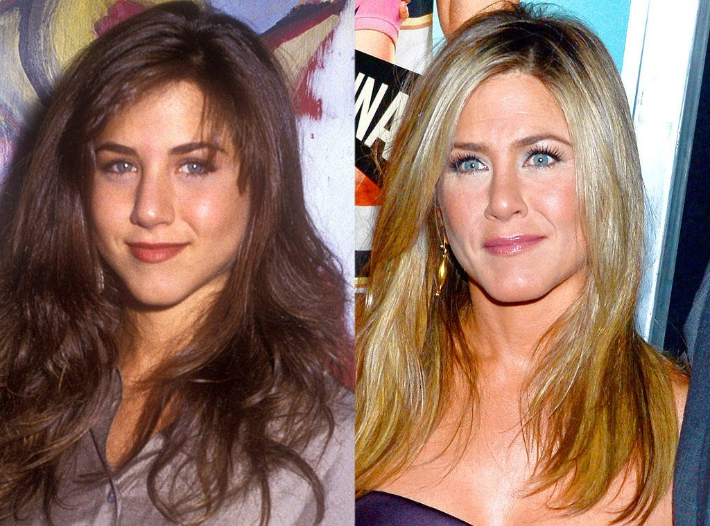 Operacija nosu Jennifer Aniston