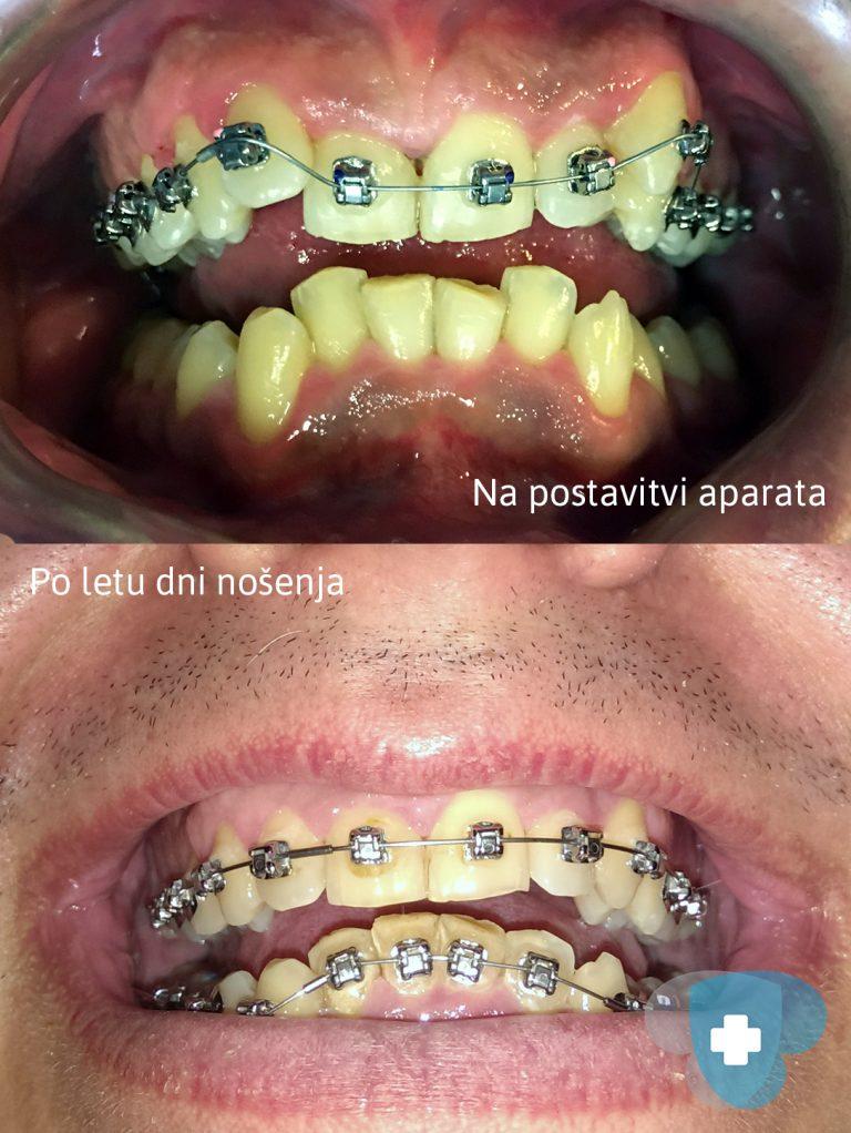 Pacient Mitja Matko po 10. mesecih nošenja aparata.